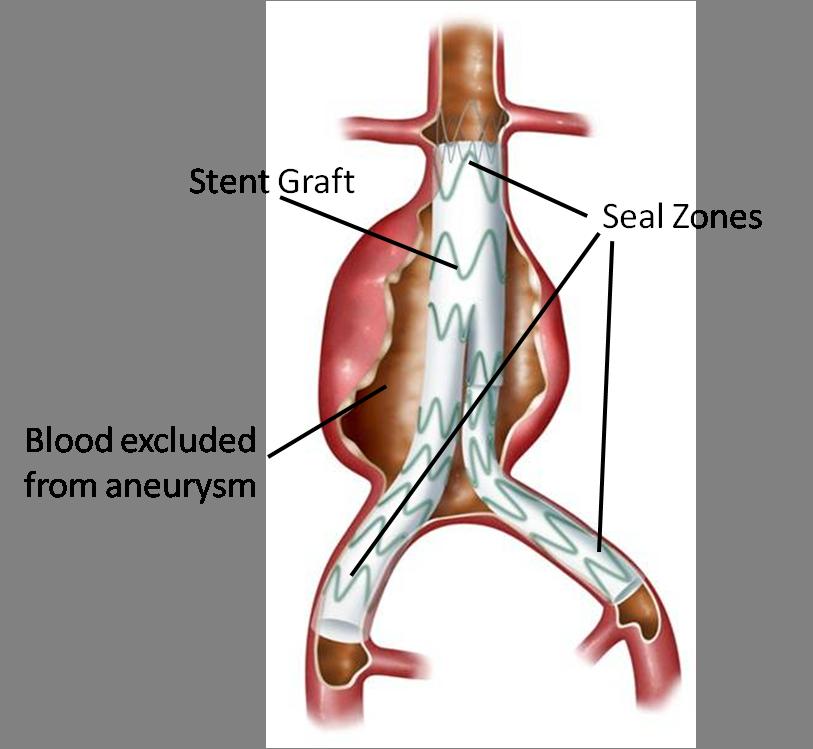Endovascular Repair Fig 2