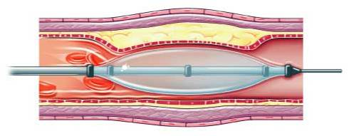 Angioplasty: A guide wire is passed across the narrowed or blocked segment of artery, A balloon is then inflated on the guidewire to stretch open the artery, which remains open when the balloon is withdrawn.
