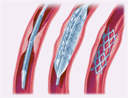 Angioplasty and Stenting: In some cases a Stent is placed to help keep the treated blood vessel open.